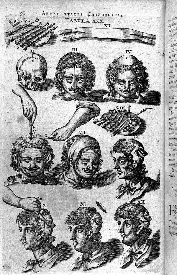 """Johannes Scultetus' """"Armamentarium Chirurgicum"""""""